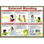 Safety Poster - External Bleeding