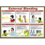 Safety Poster - External Bleeding